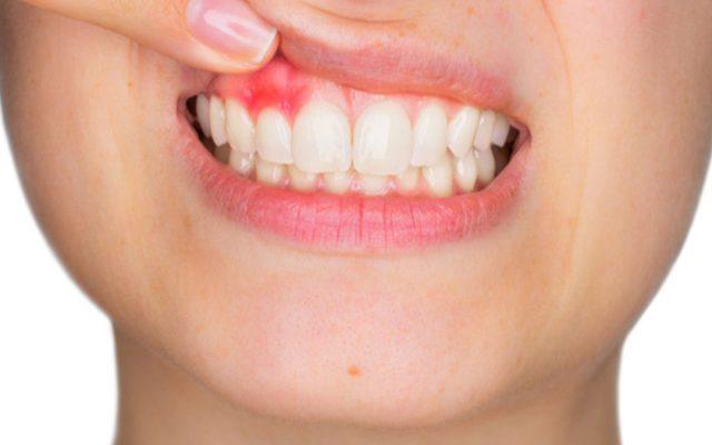 Gengivite, piorrea, parodontite