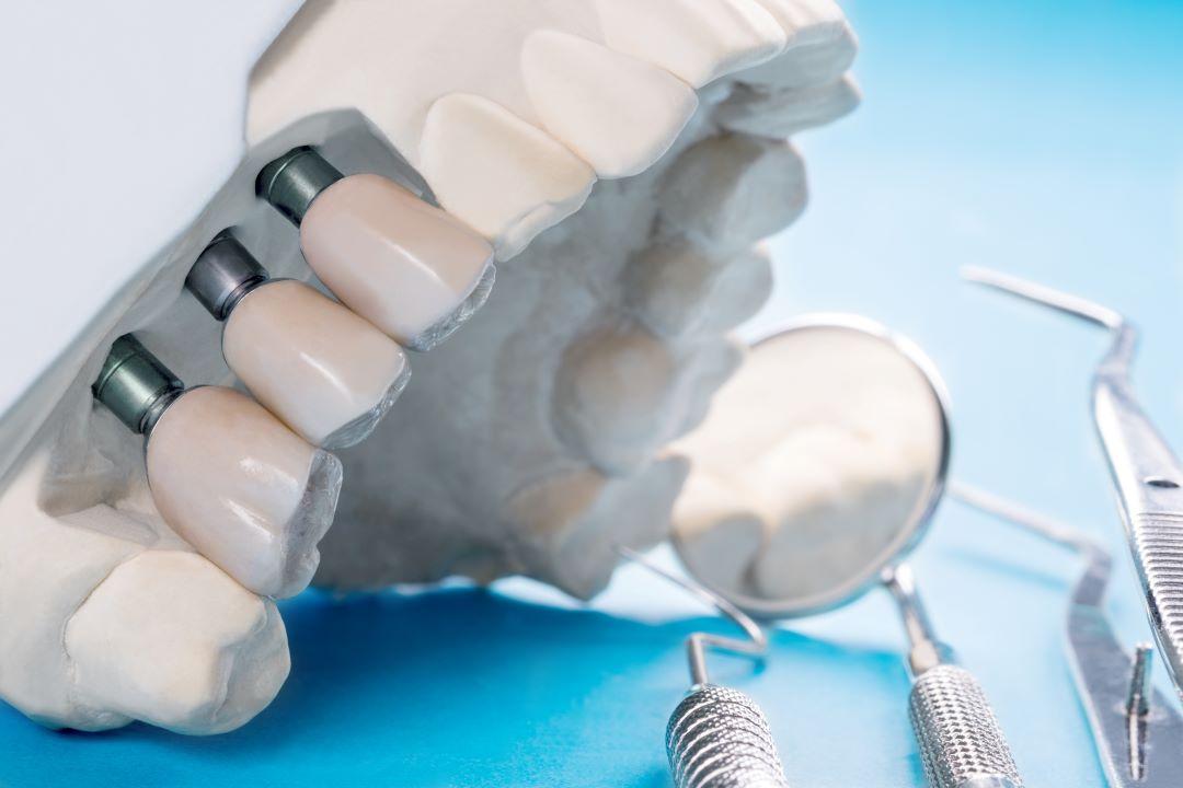 Implantologia computer guidata con tac 3Dimpianti dentali protesi como cantù bregnano