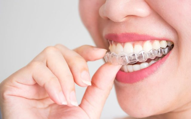 Ortodonzia invisibile invisalign provider certificatoComo Cantù