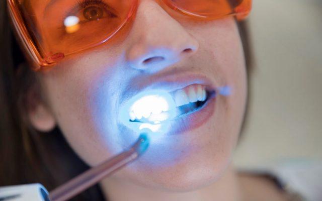 Sbiancamento dei denti e igiene dentale a bregnano, como, cantù